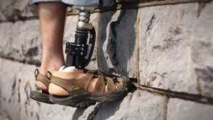 Protesi ortopedica - Officine-Ortopediche.com